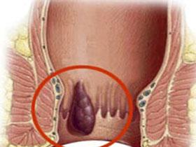 Внутренний геморрой симптомы и лечение заболевания