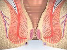 Как лечить выпадение геморроидальных узлов