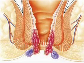 Симптомы внутреннего, внешнего и острого геморроя