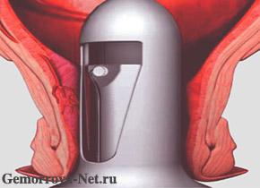 Лечение геморроя методом HAL-RAR