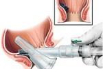 Геморроидэктомия – операция по удалению геморроя