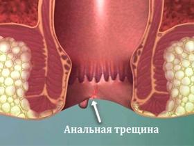 Иссечение операция анальная трещина отзывы