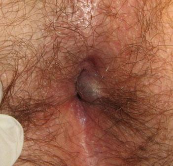 Геморрой у мужчин фото лечение симптомы Чем лечить