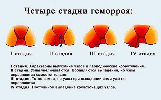 Фото всех четырех стадий геморроя.