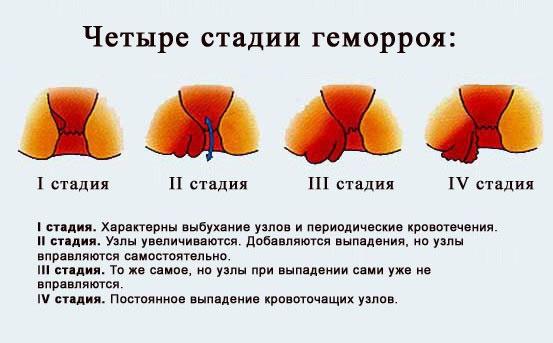 На фото описаны 4 стадии геморроя.