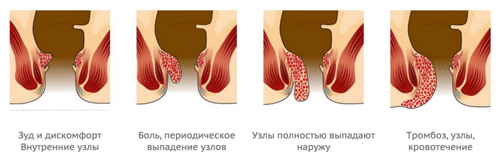гемопой возможно ли физические нанрузки человека может