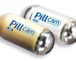 PillCam Colon – преимущества капсульного эндоскопа