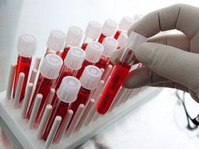 повышены лейкоциты в крови причины