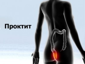 Хронический проктит симптомы и лечение