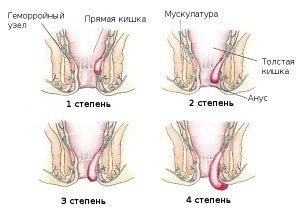 Фото всех четырех стадий геморроя